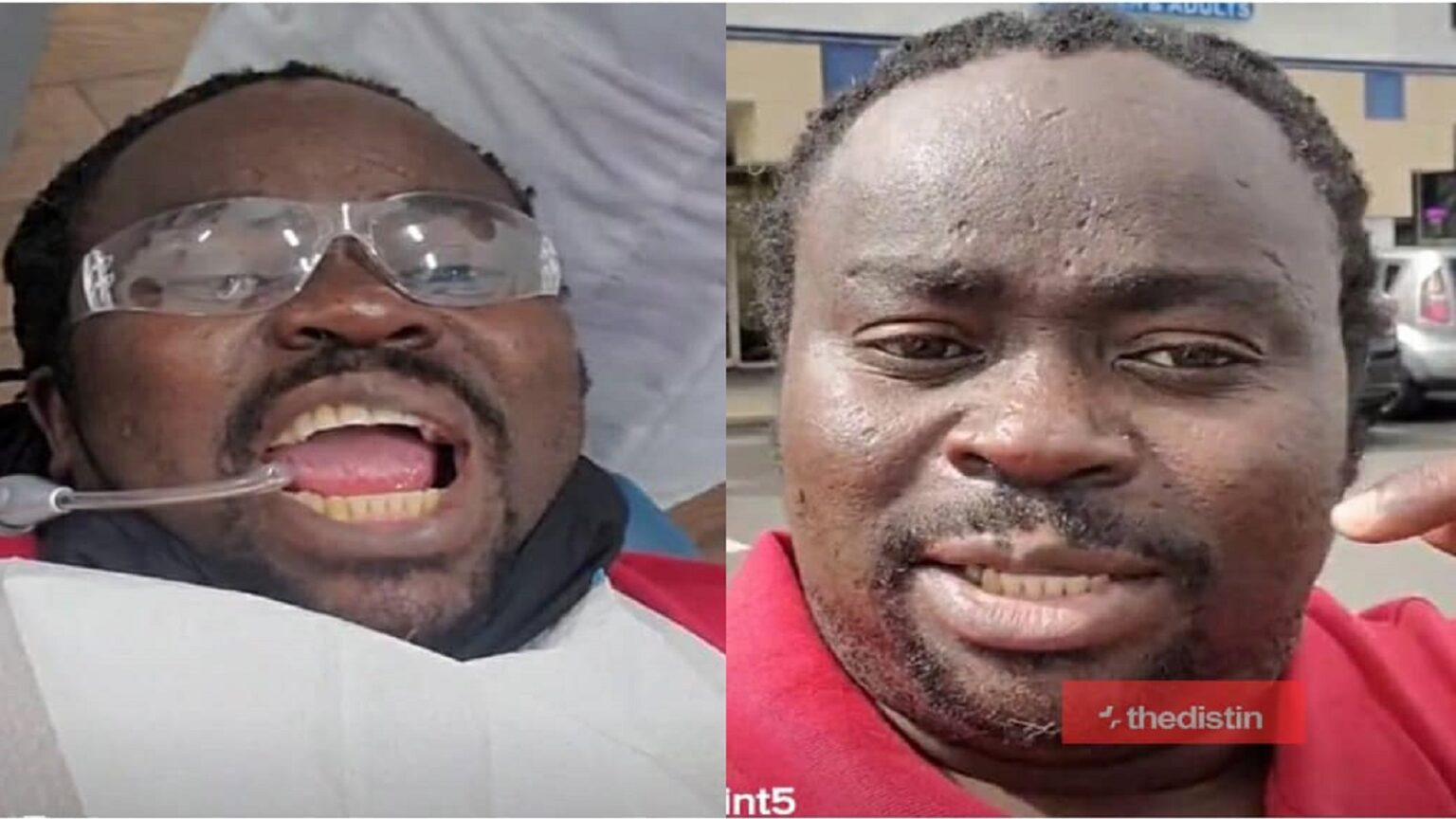 Man Proves Ghanaians Thinking His Teeth Is Bad, Wrong After Visiting The Dentist